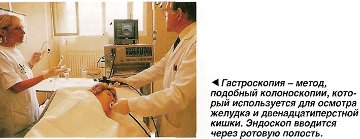 Гастроскопия - метод, который используется для осмотра желудка и двенадцатиперстной кишки