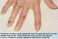 Гэматома ногтевого ложа