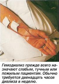 Гэмодиализ прежде всего назначают слабым, тучным или пожилым пациентам