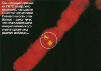 Ген, несущий признаки ГКТС, находится в шестой хромосоме
