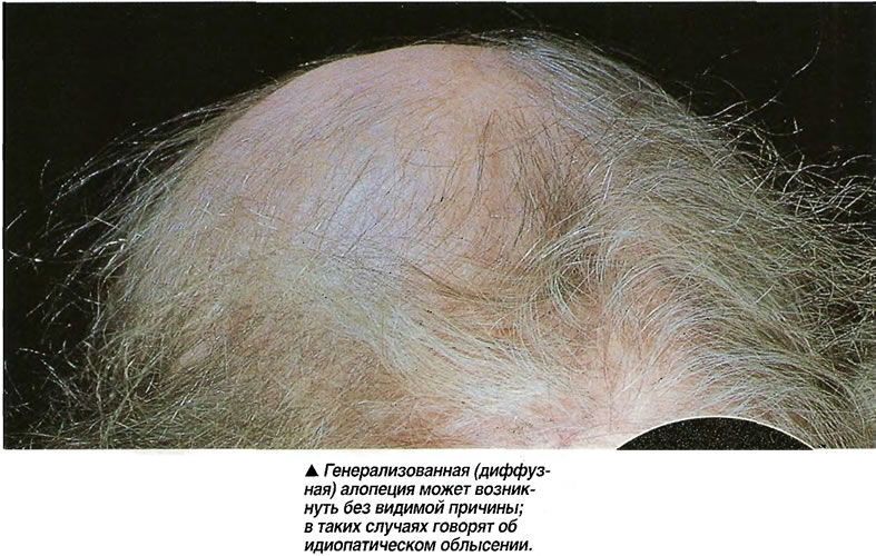 Пересадка волос у доктора волкова