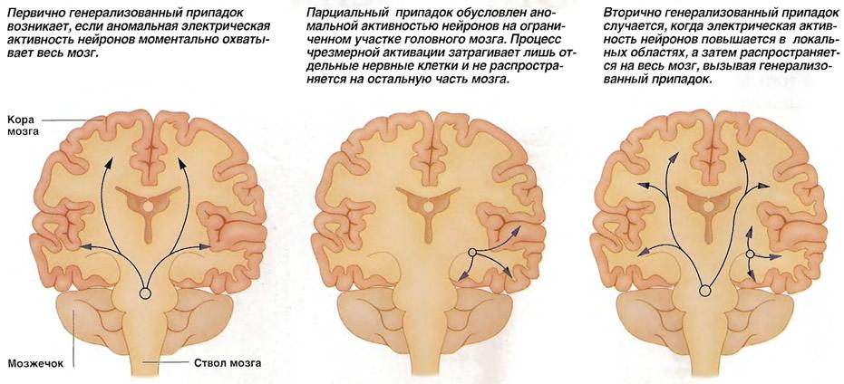 Генерализованная и парциальная эпилепсия