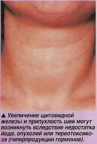 Гиперпродукция гормонов