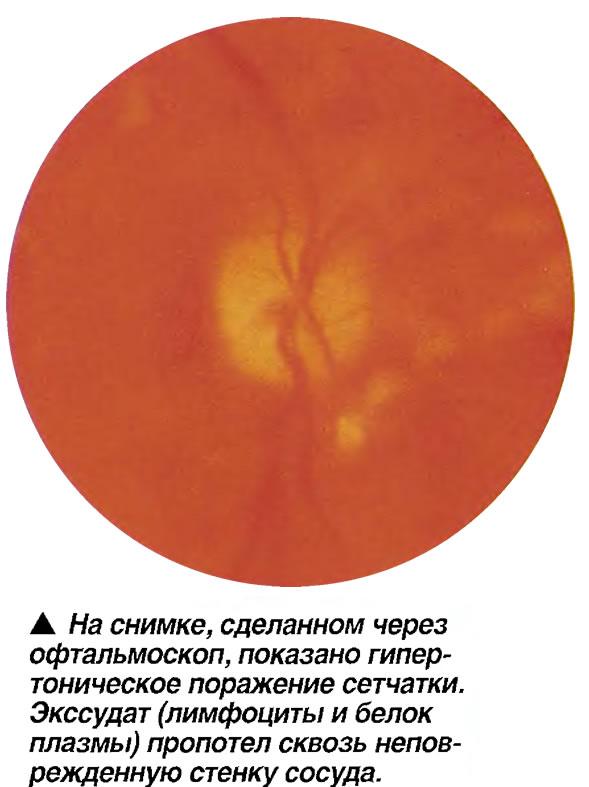 Гипертоническое поражение сетчатки