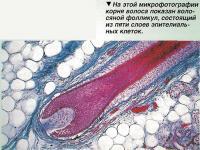 Гнездная алопеция характеризуется появлением округлых или овальных залысин