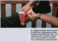 Годфри потерял много крови вследствие повреждения вены