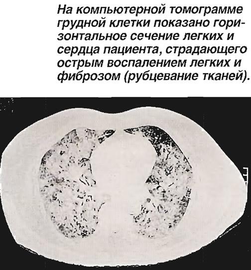 Горизонтальное сечение легких и сердца пациента
