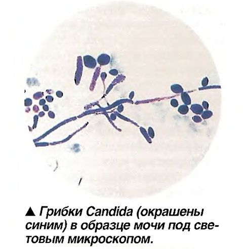 Грибки Candida (окрашены синим) в образце мочи под световым микроскопом