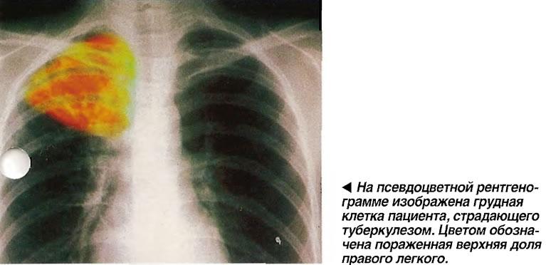 Грудная клетка пациента, страдающего туберкулезом