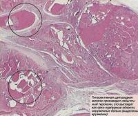 Гтерактивная щитовидная железа производит избыточный тироксин