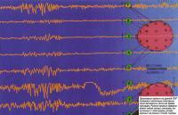 Хаотичная электрическая активность мозга во время припадка