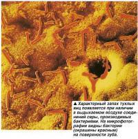 Характерный запах тухлых яиц появляется при наличии в выдыхаемом воздухе соединений серы