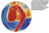 Хенодеоксихолевая кислота применяется для растворения желчных камней