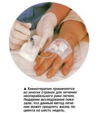 Химиотерапия применяется во многих странах для лечения неоперабельного рака легких