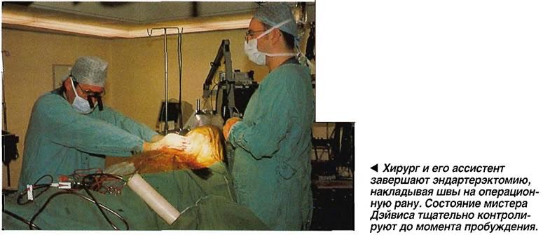Хирург и его ассистент завершают эндартерэктомию, накладывая швы на операционную рану
