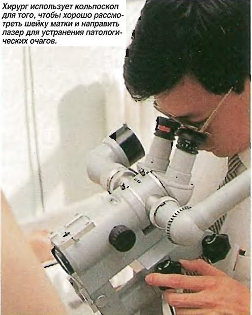 Хирург использует кольпоскоп