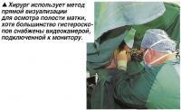 Хирург использует метод прямой визуализации для осмотра полости матки