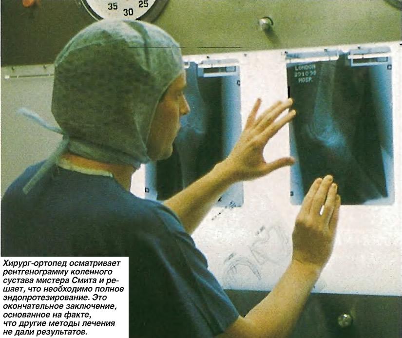 Хирург-ортопед осматривает рентгенограмму коленного сустава