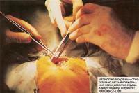 Хирург-педиатр оперирует мальчика 2,5 лет