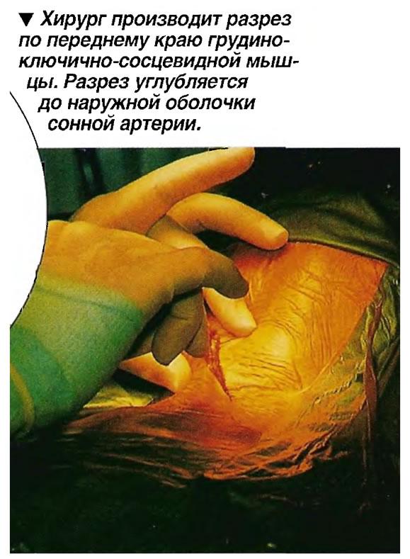Хирург производит разрез по переднему краю грудино-ключично-сосцевидной мышцы