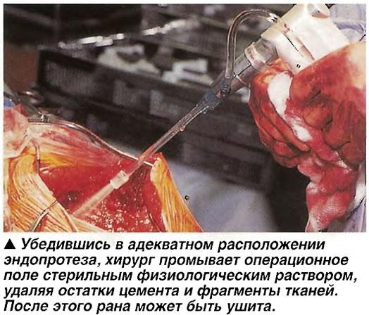 Хирург промывает операционное поле стерильным физиологическим раствором