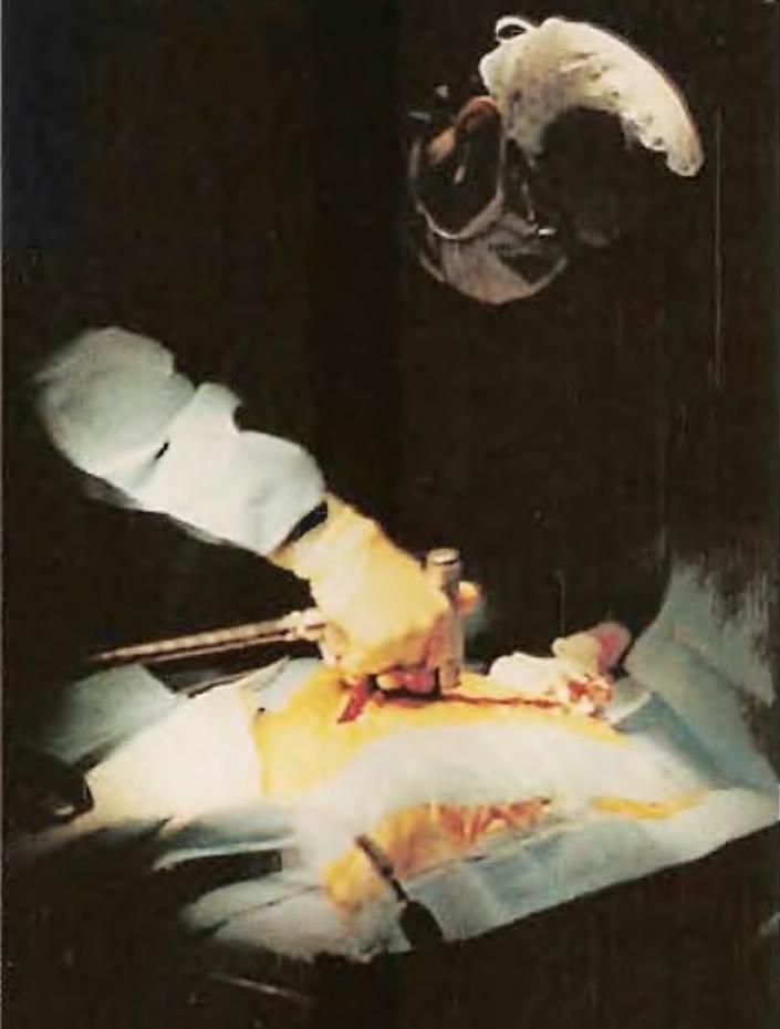 Хирург разделяет грудную кость электропилой