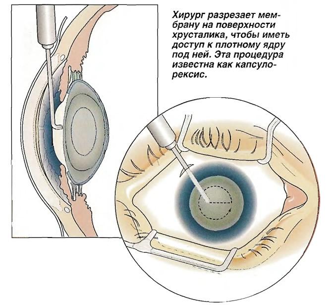 Хирург разрезает мембрану на поверхности хрусталика