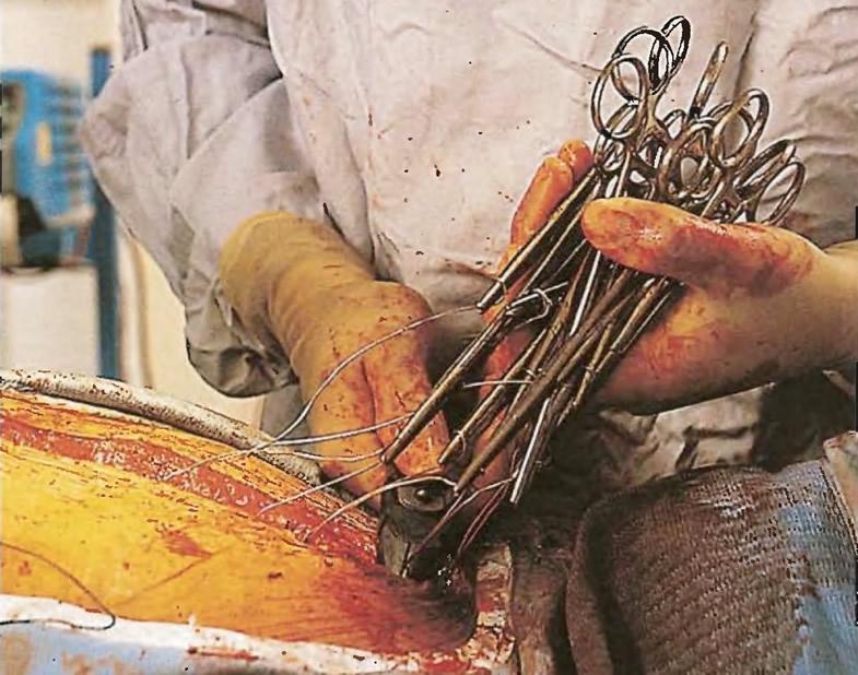 Хирург сшивает разделенные половины грудины