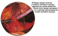 Хирург вводит катетер в полость мочевого пузыря