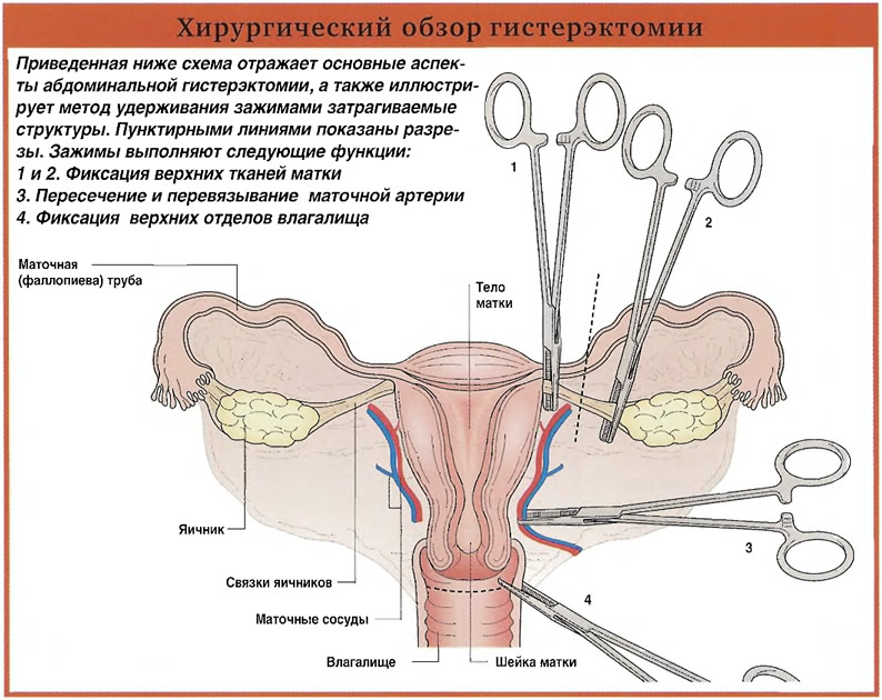 Хирургический обзор гистерэктомии