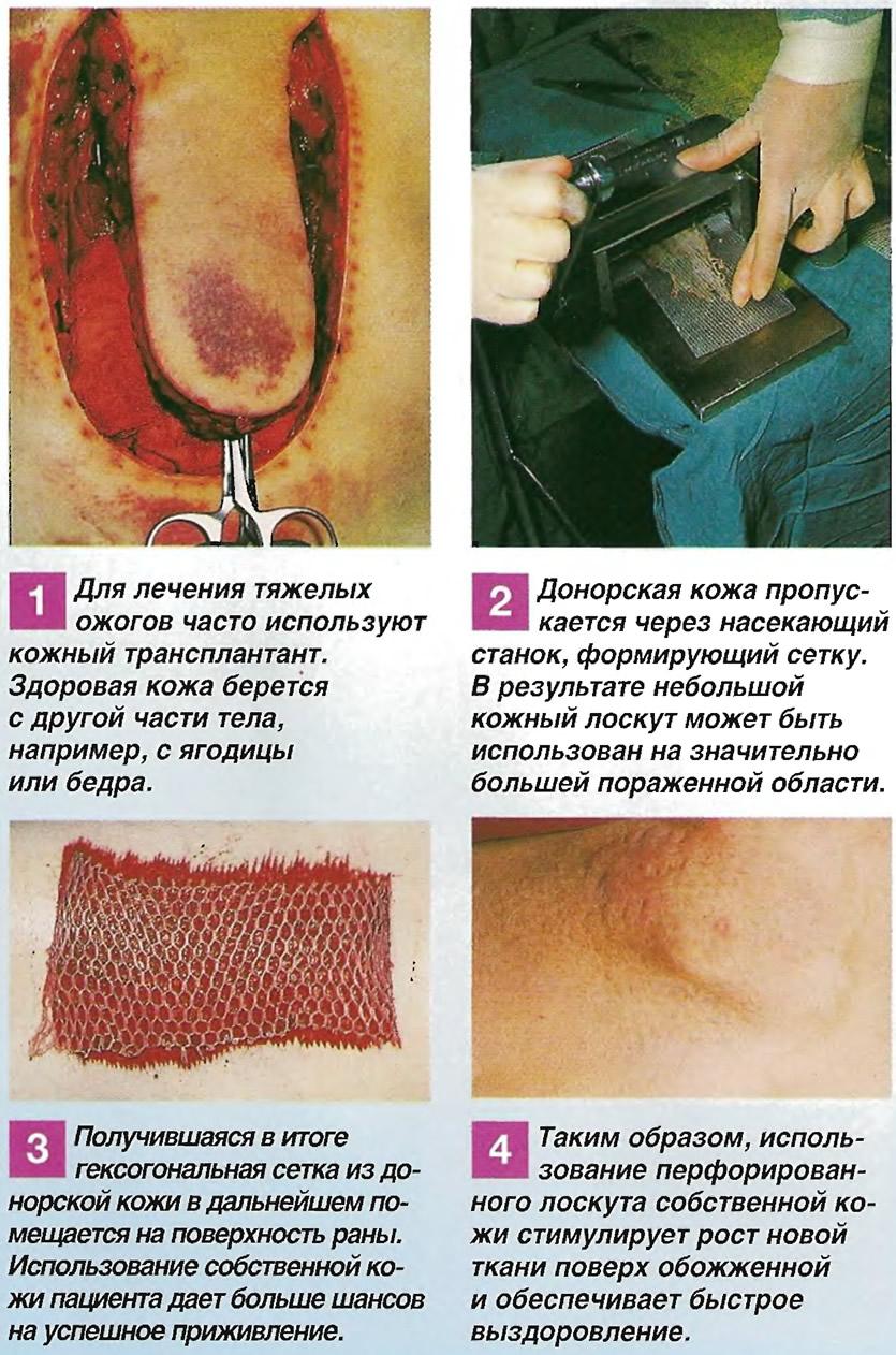 Хирургическое лечение ожоговых ран