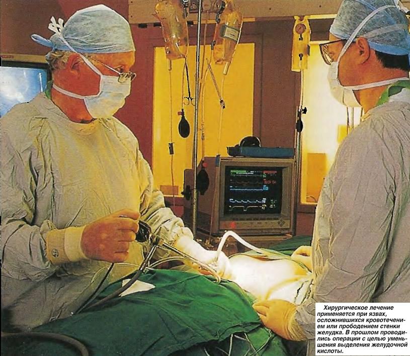 Хирургическое лечение применяется при язвах, осложнившихся кровотечением