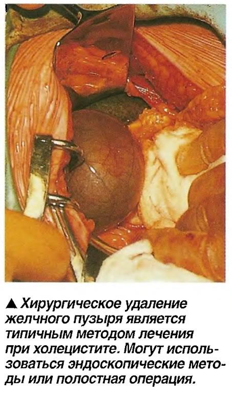 Хирургическое удаление желчного пузыря является типичным методом лечения при холецистите