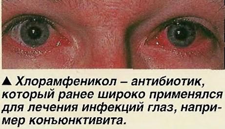 России лечение конъюнктивита хламидии антибиотики родители занимают