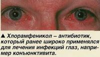 Хлорамфеникол ранее широко применялся для лечения инфекций глаз