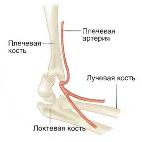 Хорошо видно расположение костей локтя и плечевой артерии