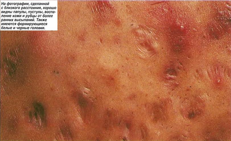 Хорошо видны папулы, пустулы, воспаление кожи и рубцы