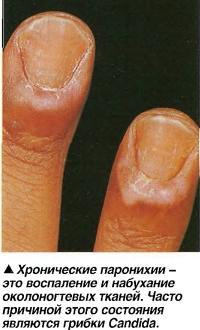 Хронические паронихии - это воспаление и набухание околоногтевых тканей