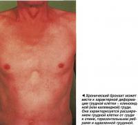 Хронический бронхит может вести к характерной деформации грудной клетки