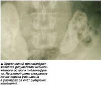 Хронический пиелонефрит является результатом невыле-ченного острого пиелонефрита