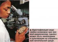 Идентификация вида грибка возможна при прямой микроскопии