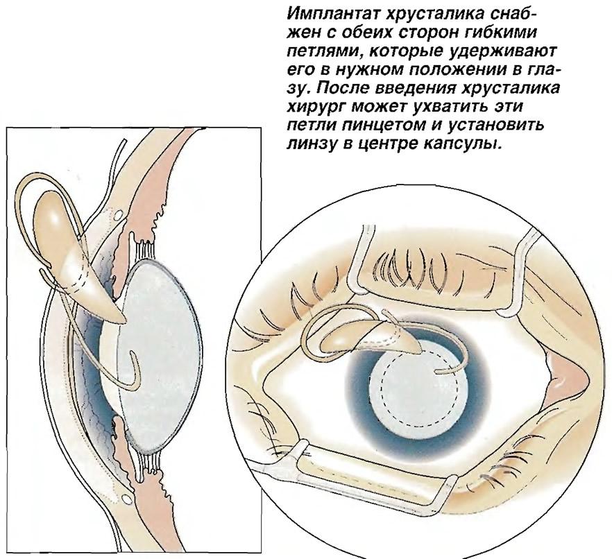 Имплантат хрусталика снабжен с обеих сторон гибкими петлями