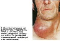 имптомы депрессии следует отличать от проявлений, связанных с дисфункции щитовидной железы