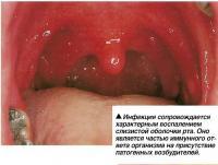 Инфекция сопровождается характерным воспалением слизистой оболочки рта