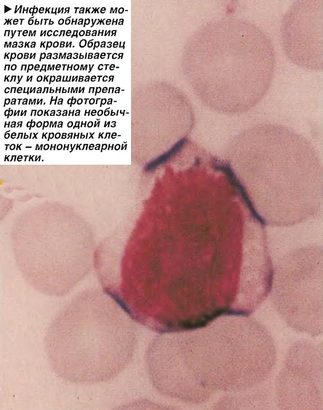 Инфекция также может быть обнаружена путем исследования мазка крови