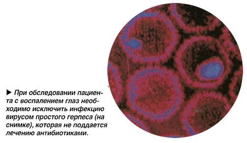 Инфекция вирусом простого герпеса