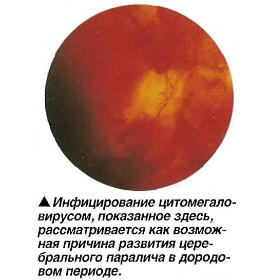 Инфицирование цитомегало-вирусом