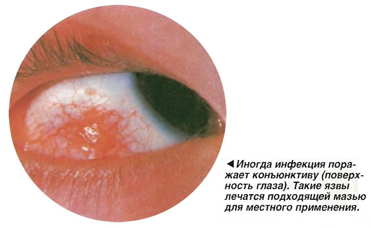 Иногда инфекция поражает конъюнктиву (поверхность глаза)