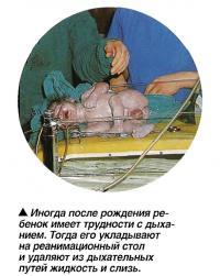 Иногда после рождения ребенок имеет трудности с дыханием