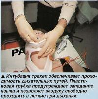 Интубация трахеи обеспечивает проходимость дыхательных путей